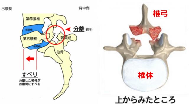 分離症は椎体と椎弓が離れた状態