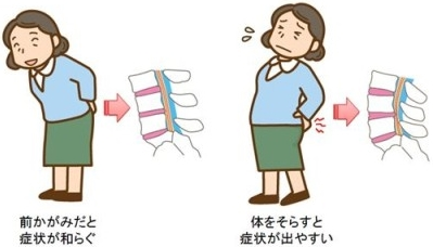 脊柱管は、背筋をのばすと圧力が上がり辛くなり、丸めると圧力が下がり楽になる。