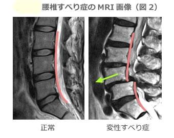 腰椎すべり症は椎体が前にすべる