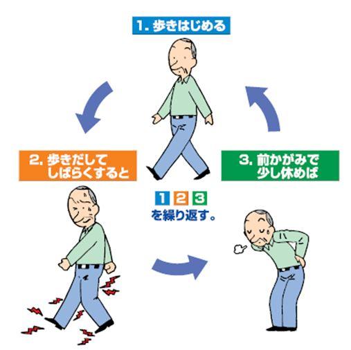 間欠性跛行とは、歩いてしばらくすると辛くなり、休むとまた歩けること