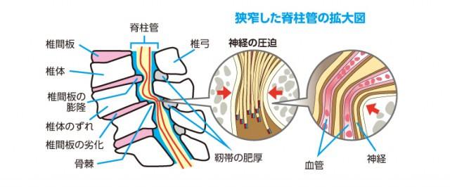 脊柱管狭窄症の原因は