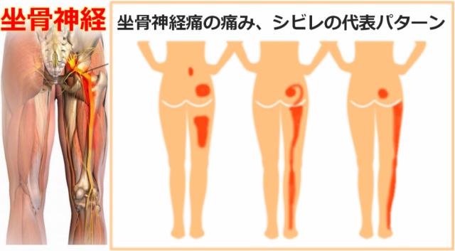 坐骨神経痛の解剖と症状
