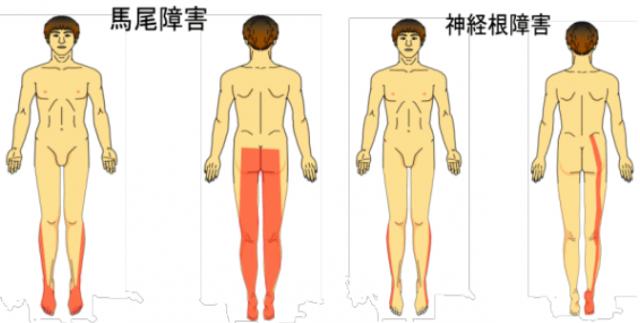 脊柱管狭窄症の種類です