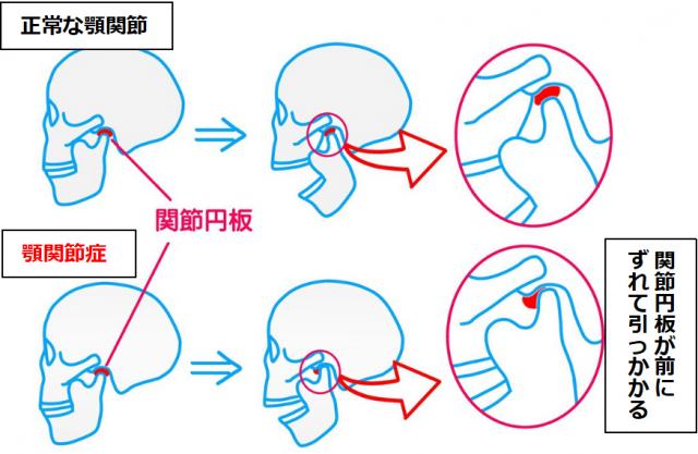 顎関節症は関節円板が引っかかる
