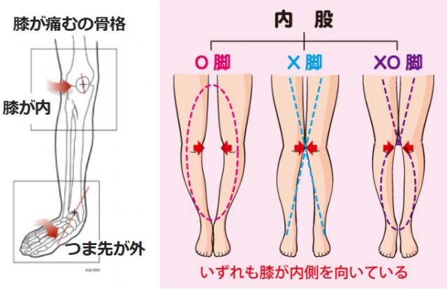 変形性膝関節症になる骨格