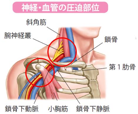 胸郭出口症候群の圧迫部位
