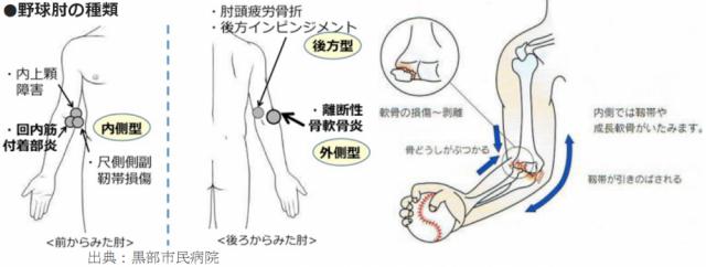 野球肘の種類と機序