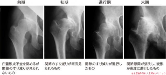 変形性股関節症の進行の程度